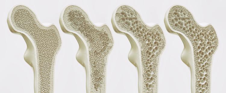 Osteoporoza – przyczyny, objawy, leczenie